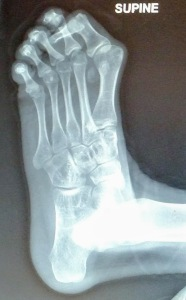 Foot xray showing bent big toe