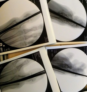 Photo of X-rays showing pins through right and left big toes
