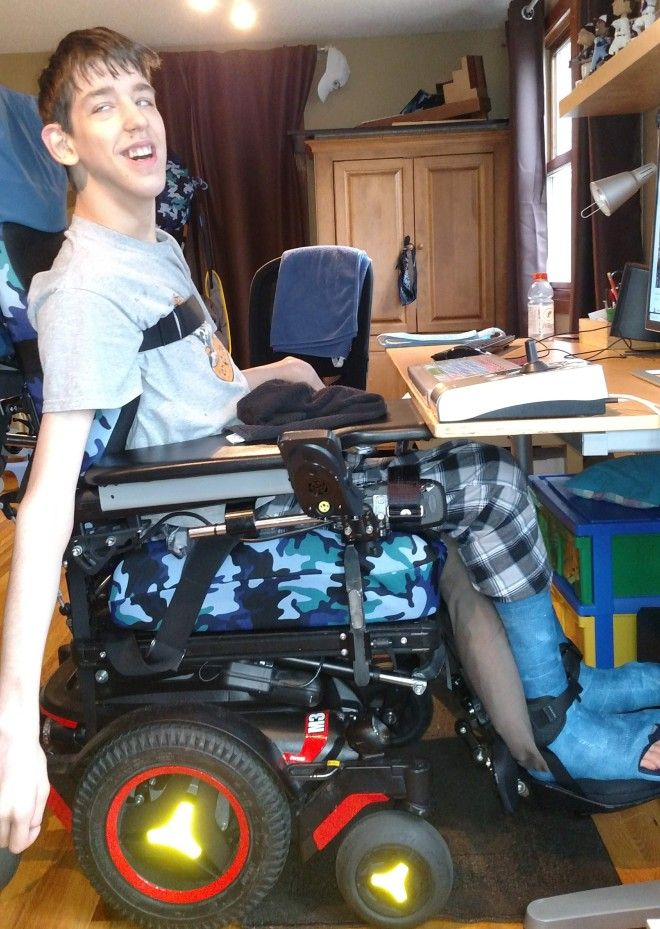 Justin sitting in wheelchair with casts on legs